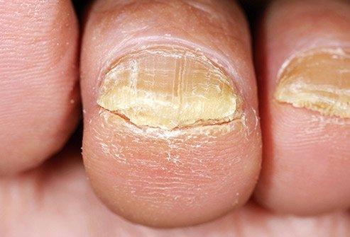 Toenail Fungus on smaller toes